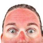 Sunburnt Face