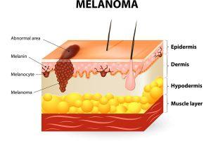 Melanoma Graphic