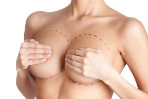 Breast Surgery Marks
